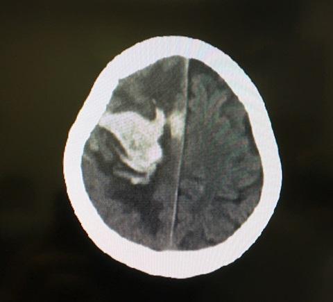 1週間後の脳内出血の状態